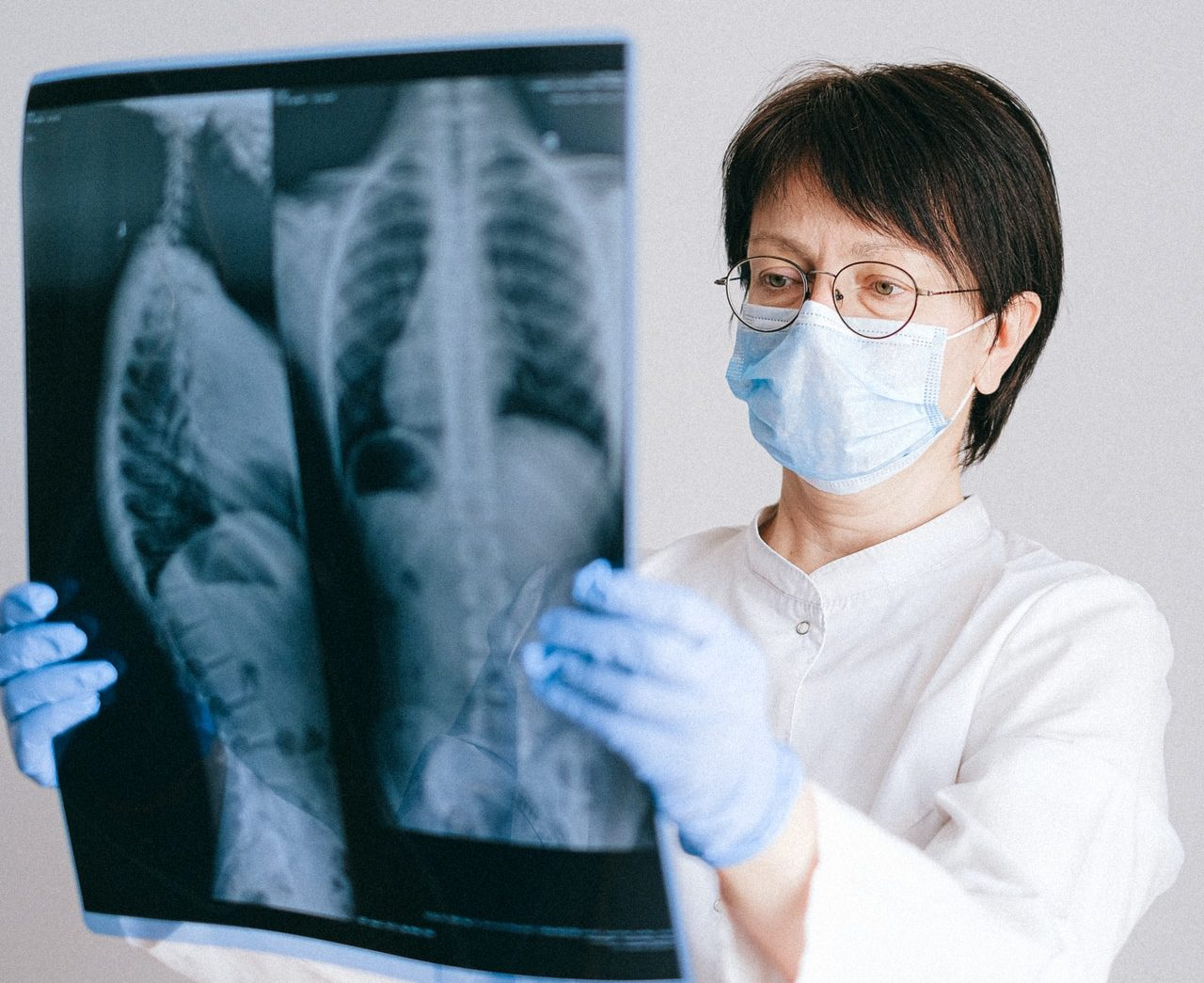 A doctor holding an X-ray of the lungs